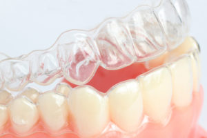 Answers to Questions About Invisalign® Clear Braces