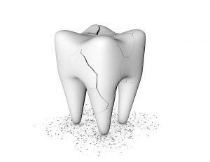 Des Moines Dentist Fixes Cracked Teeth | Gateway Dental Group