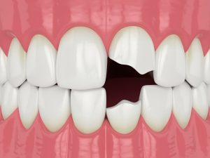 repair with dental bonding