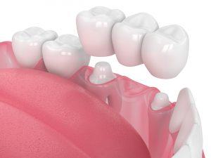 placing a dental bridge