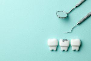 dental filling for cavity
