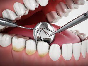 3D illustration showing dentist tools and dental plaque on model. 3D illustration.