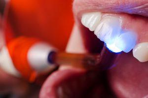 des moines dental filling