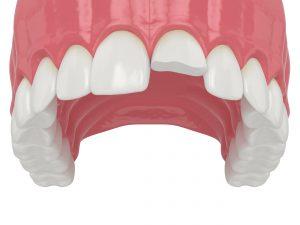 des moines emergency dental care