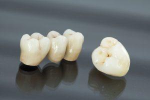 des moines dental crowns