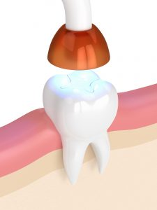 des moines dental fillings