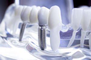 des moines dental implants
