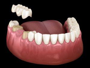 des moines dental bridge
