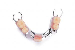 des moines partial denture