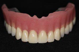 des moines full dentures