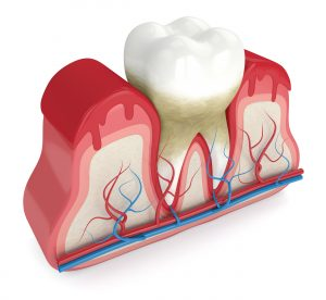 des moines periodontal cleaning