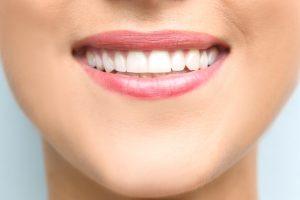 des moines dental bonding