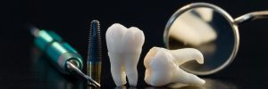 des moines tooth extraction