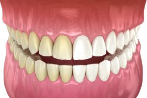 des moines teeth whitening