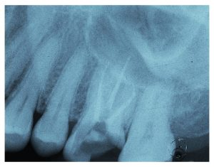 des moines root canal